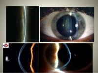 Slit Lamp Exam Findings