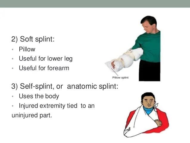 splinting in sports