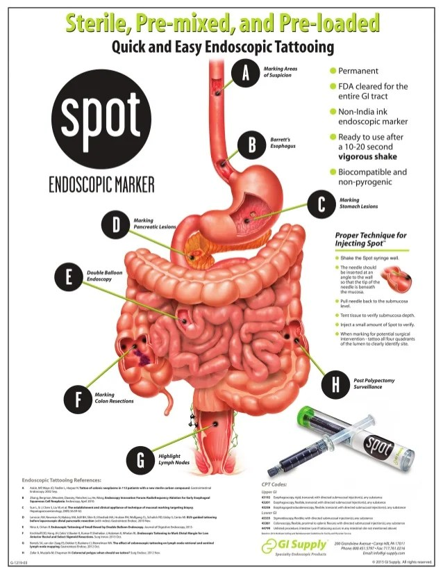 Spot Endoscopic Tattoo Poster