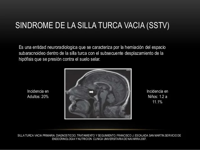 Sindrome de La Silla Turca Vacia EMPTY SELLA SYNDROME
