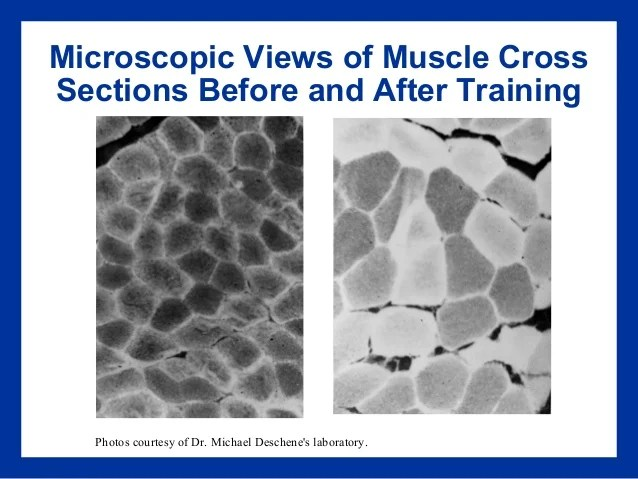 Image result for Myofibril before and after strength training microscopic image