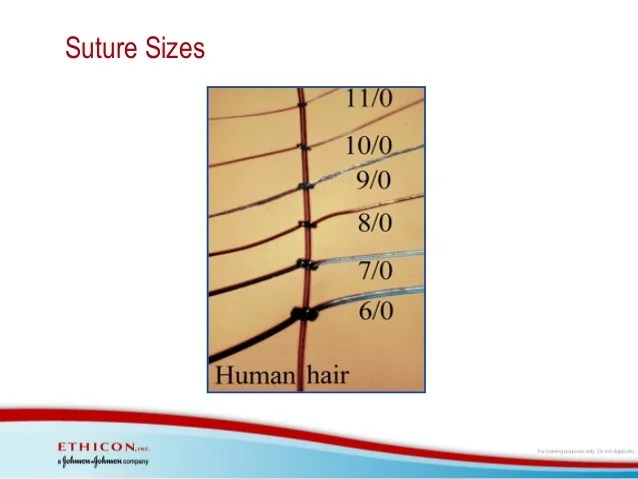 Suture material compared with human hair sizes also and needle technology rh slideshare