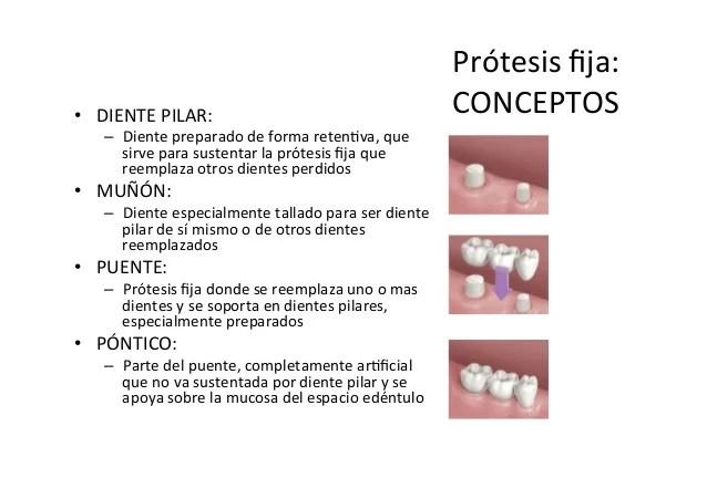 Concepto de Protesis