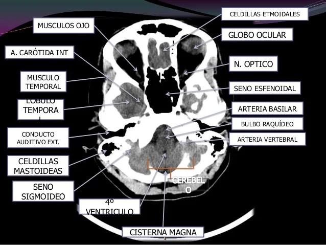 ImagenologaTAC Cerebro