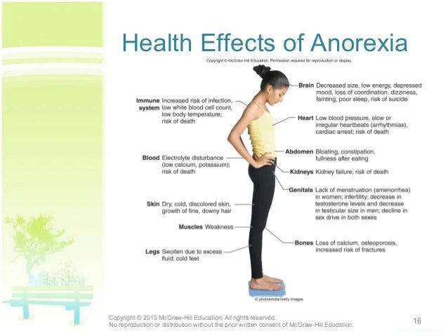 Effects Anorexia Physical