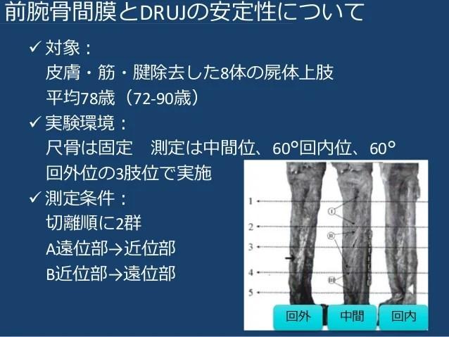 DRUJ(遠位橈尺関節)の不安定性とTFCC(三角線維軟骨複合體)損傷に関する文獻まとめ