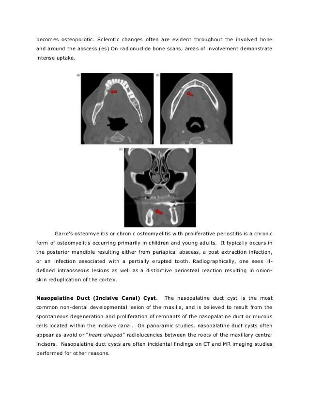 Mandible Osteomyelitis Chronic Sclerosing