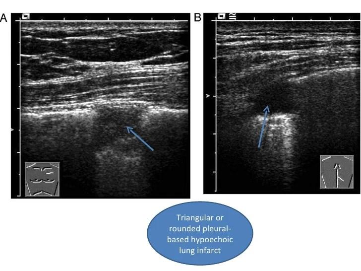 Thoracic Ultrasound For Diagnosing Pulmonary Embolism