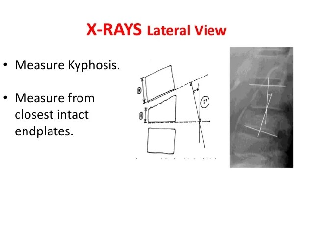 Thoraco lumbar fractures