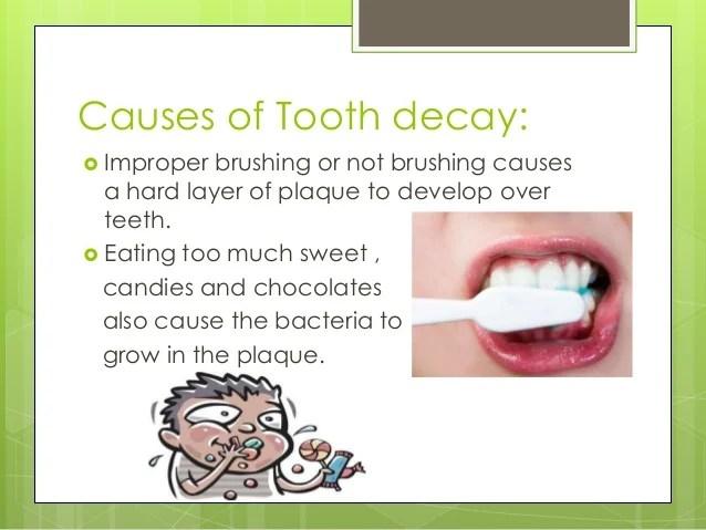 Tooth Deacy