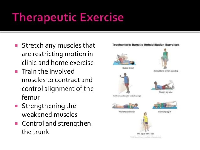 Avoid Bursitis Trochanteric Exercises