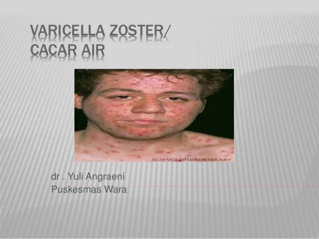 Varicella zoster