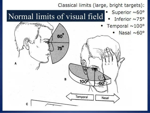 Normal limits of visual field also testing and interpretation rh slideshare