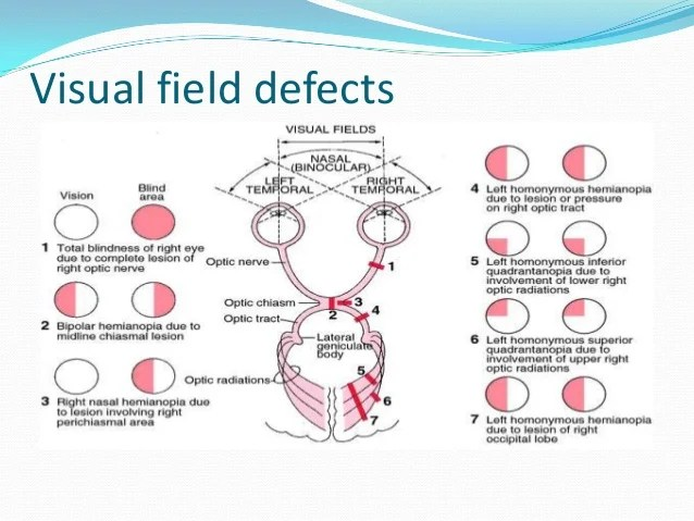 visual field also perceptual rh slideshare
