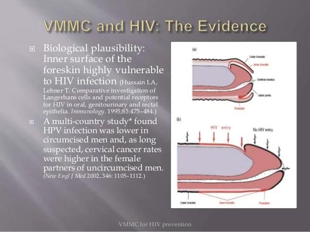 Voluntary medical male circumcision vs hiv prevention ...