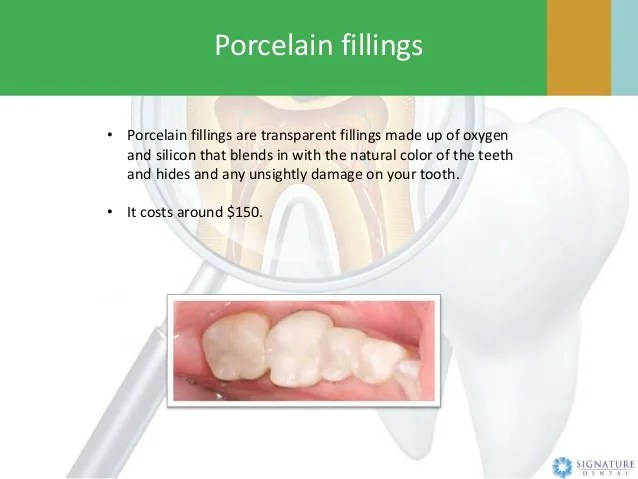 What is a Dental Filling by Signature Dental