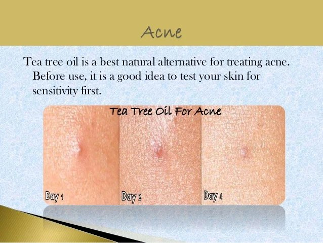Image Result For How Good Is Tea Tree Oil For Acne