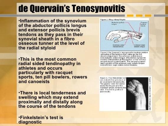 De Quervain tendinitis
