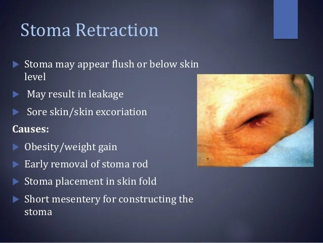 Stoma complications & its management