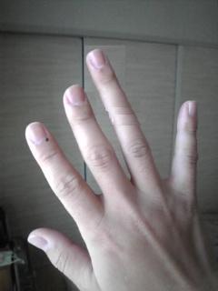 「薬指」が「人差し指」より長い : 指の長さで男性脳か女性脳 ...