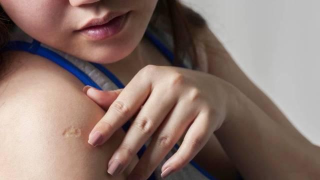 Impfung: Das Geheimnis hinter der Narbe, die manche Menschen am Arm tragen