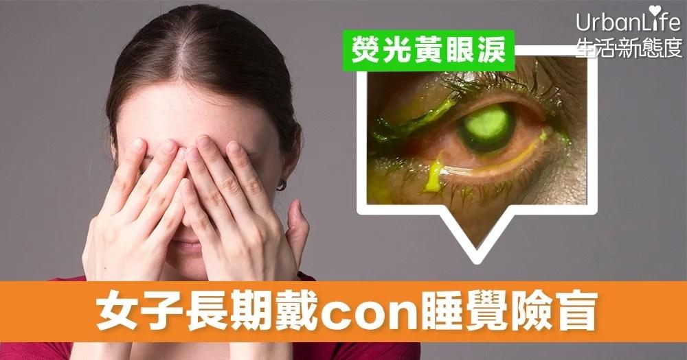 【隱形眼鏡】女子長期戴隱形眼鏡過夜 流出熒光黃液體 險釀成永久失明   UrbanLife 健康新態度