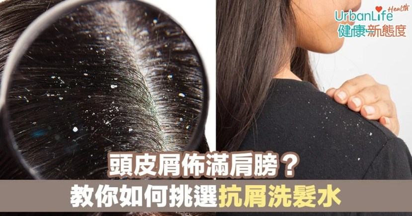 【去頭皮方法】頭皮屑佈滿肩膀?教你如何挑選抗屑洗髮水 | UrbanLife 健康新態度