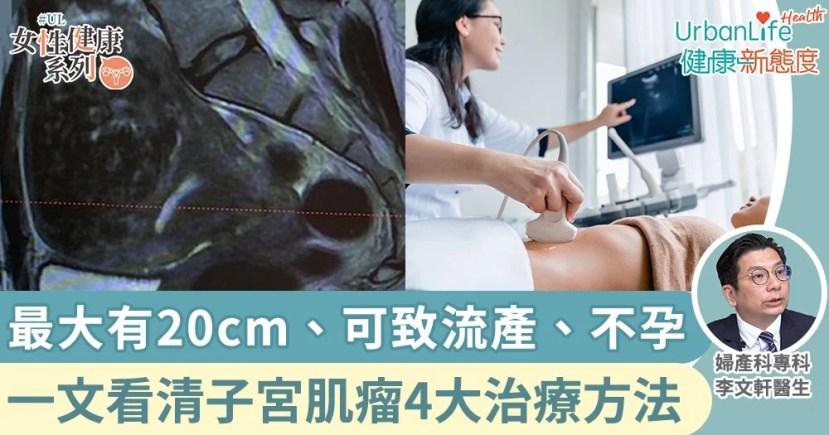 【子宮肌瘤癥狀】最大有20cm或致流產!了解子宮肌瘤種類及治療方法   UrbanLife 健康新態度