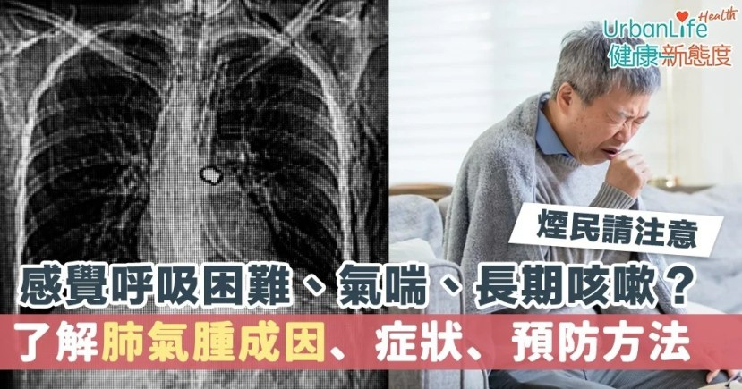 【肺氣腫癥狀】呼吸困難/長期咳嗽?一文看清肺氣腫癥狀/預防方法   UrbanLife 健康新態度
