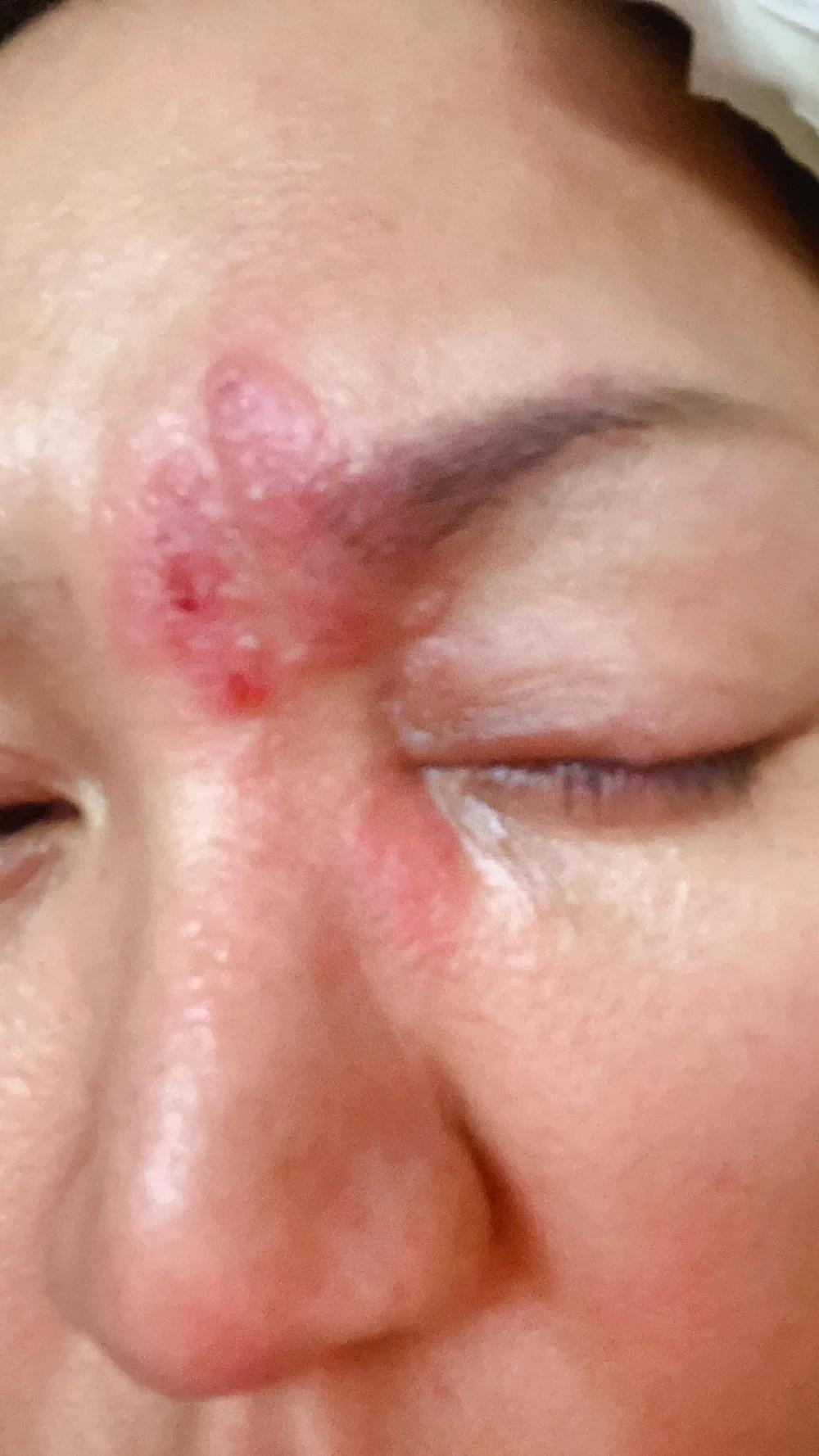 【生蛇治療】黎瑞恩生蛇上眼又腫又痕!即看帶狀皰疹徵狀和治療方法   UrbanLife 健康新態度
