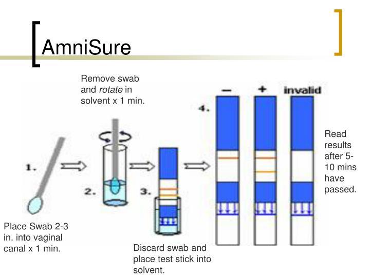 PPT - Preterm Rupture of Membranes PowerPoint Presentation - ID:2686700