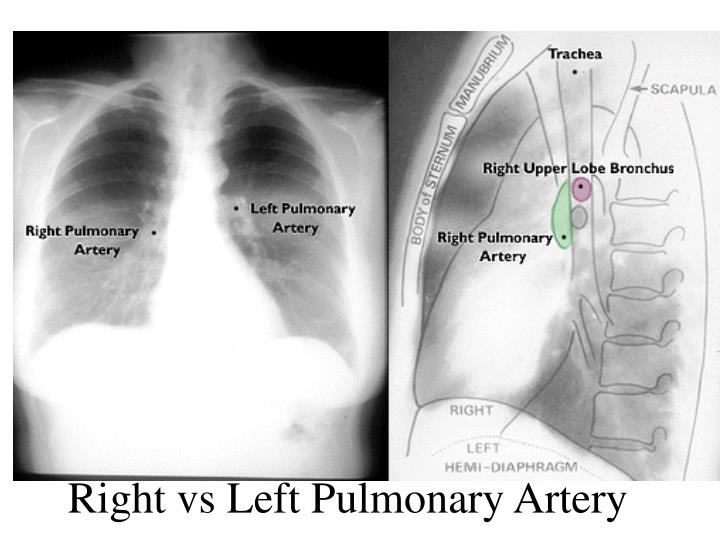 PPT - Principles of Radiology PowerPoint Presentation - ID ...