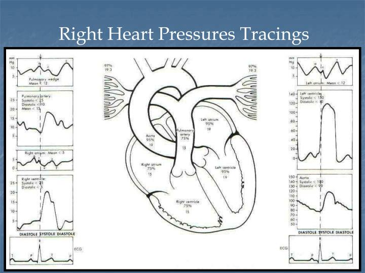 PPT - Right Heart Catheterization – basic right heart ...