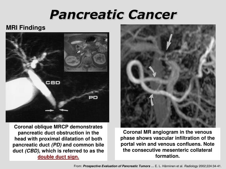 PPT  Pancreatic Cancer PowerPoint Presentation  ID3295800