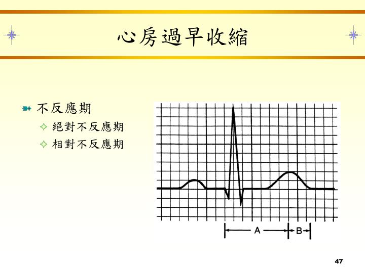 PPT - 心電圖原理及常見心電疾病簡介 PowerPoint Presentation - ID:3329745