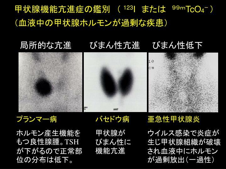 PPT - 甲狀腺機能亢進癥 の鑑別 ( 123 I または 99m TcO 4 ー ) (血液中の甲狀腺ホルモンが過剰な疾患) 局所的 ...