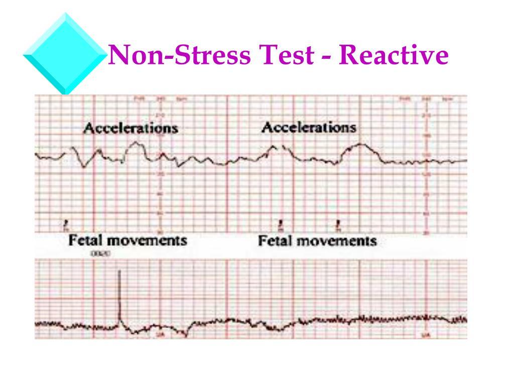 PPT - Fetal Assessment PowerPoint Presentation free ...