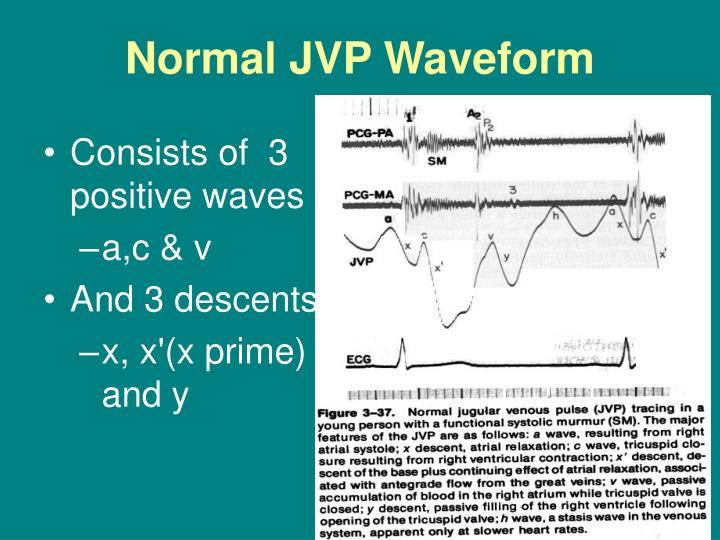 PPT - Jugular Venous Pulse PowerPoint Presentation - ID ...