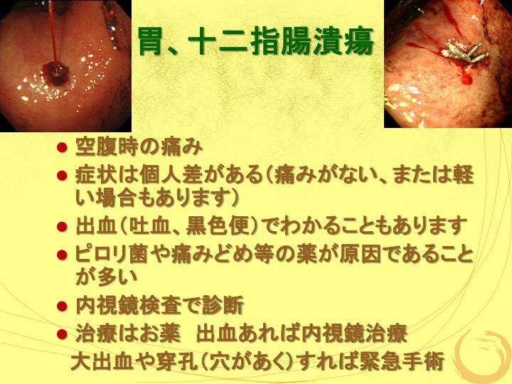 PPT - 健康教室 - 腹痛でわかるいろんな病気 - PowerPoint Presentation - ID:4081931
