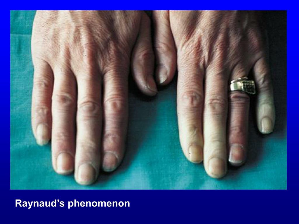 PPT - Sjögren's syndrome (SS) PowerPoint Presentation ...