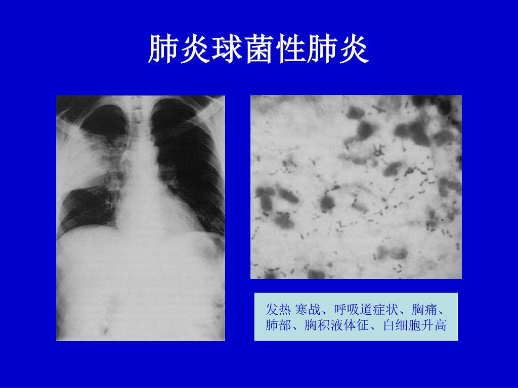 PPT - 不明原因肺炎診治標準及診療規范 PowerPoint Presentation - ID:4677922