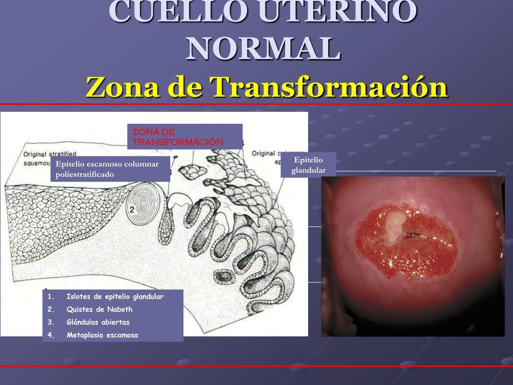 PPT - Diagnóstico y tratamiento de lesiones precancerosas ...