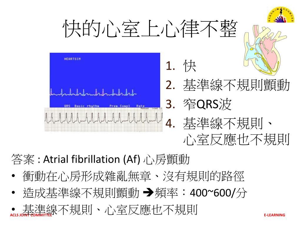 PPT - 動態心律不整判讀 Dysrhythmias PowerPoint Presentation. free download - ID:4970207