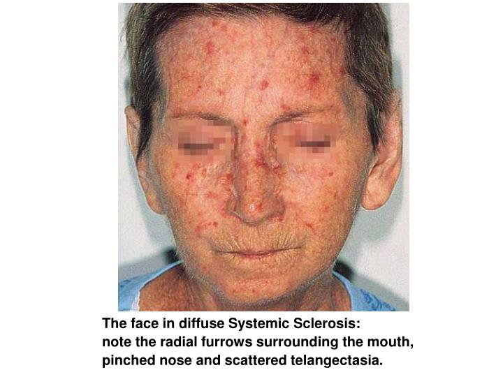 PPT  The face in diffuse Systemic Sclerosis note the radial furrows surrounding the mouth