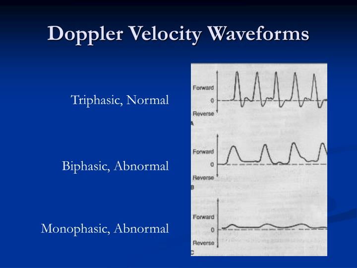 PPT - Continuous Wave Doppler Device PowerPoint ...