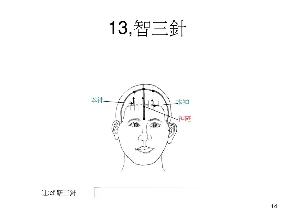 PPT - 7, 開明枕三針 PowerPoint Presentation, free download - ID:5981580