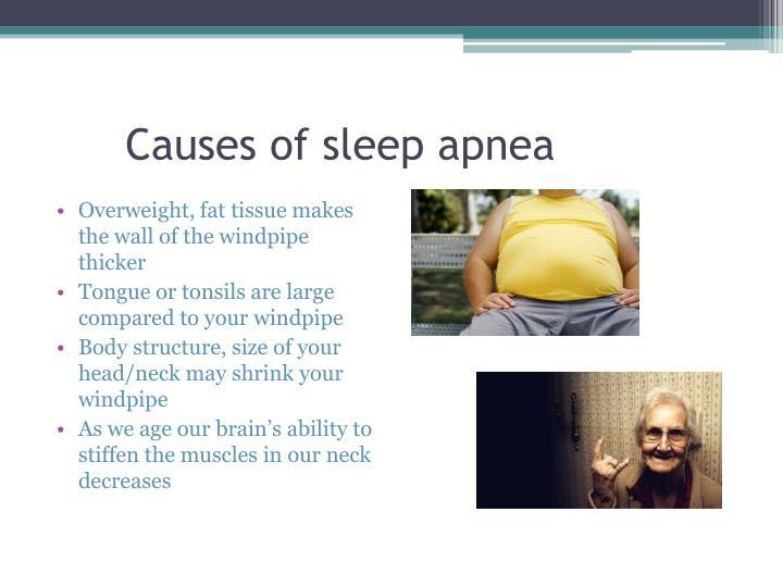 PPT  SLEEP APNEA PowerPoint Presentation  ID6259697