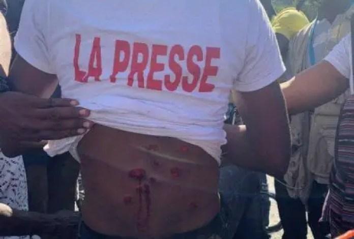 Brutalités policières contre des journalistes : le SG Frantz Exantus explique et rassure - journalistes, policiers