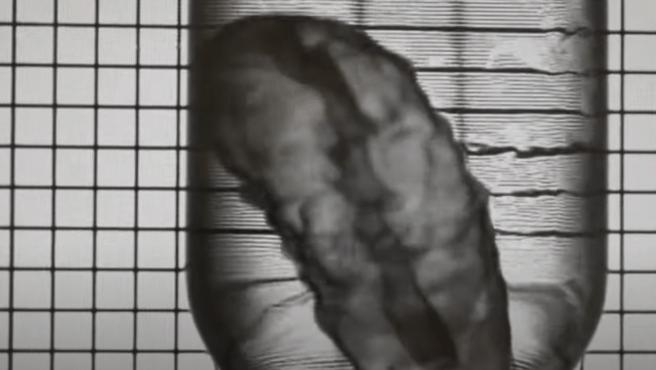 Este es el páncreas en 3D que podría sustituir al órgano real.