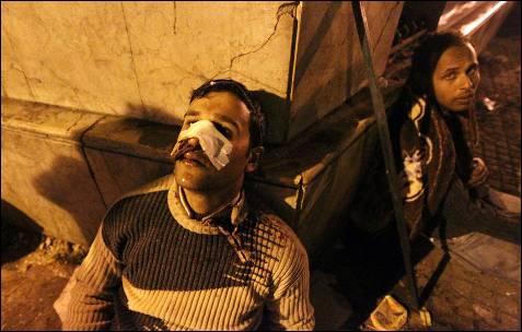 Manifestantes antigubernamentales, heridos durante los enfrentamientos con los seguidores de Mubarak. AFP / KHALED DESOUKI